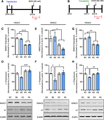 ethanol exposure regulates gabra1 expression via histone