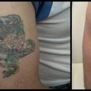 rethink the ink tattoo removal las vegas 10 photos tattoo