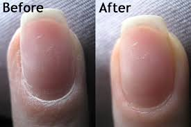 make over may rehab your nails how to remove acrylics bee polished