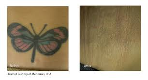 laser tattoo removal salem or neaman medispa tattoo laser