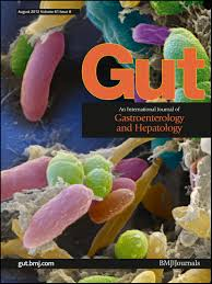 61 by Analysis Of Gut Microbial Regulation Of Host Gene Expression Along
