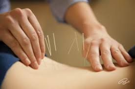 study of acupuncture for low study acupuncture and low back