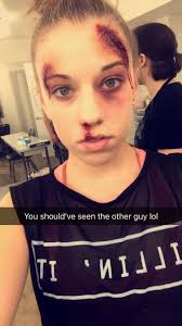 rigid collodion halloween city 1090 best injuries images on pinterest fx makeup makeup ideas