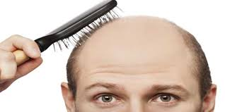 bandage hair shaped pattern baldness how to stop frontal hair loss in men hair loss