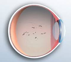 bright flashes of light in eye flashes floaters cataract glaucoma retina consultants