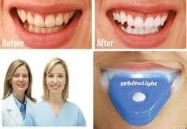 Berapa Pemutih Gigi Whitelight whitelight teeth whitening pemutih gigi niaunik