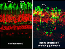 What Is Being Blind Like Facts About Retinitis Pigmentosa National Eye Institute
