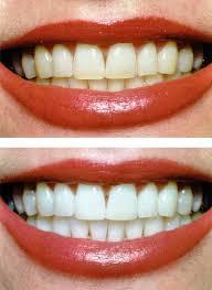 teeth whitening 5 star dental