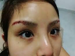 vanny u0027s telling everything my experiences on eyebrow laser