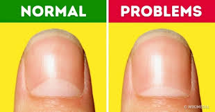 13 health problems the moons on your nails warn you about