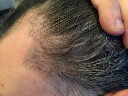 pics of scalp micropigmentation on people with long hair scalp micropigmentation archives hair transplant los angeles