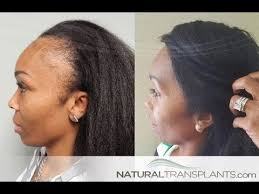 hair transplant for black women hair transplant for women before and after youtube video with dr