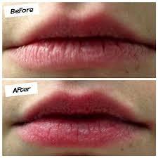 Chapped Lips Meme - always chapped lips the art of beauty