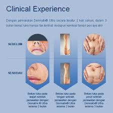 Salep Dermatix dermatix ultra