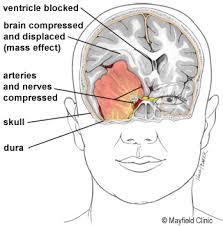 Anatomy Of A Cats Eye Meningioma Meningiomas Brain Tumor Meninges Mayfield Brain