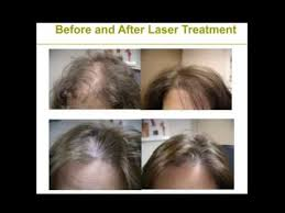 low level light therapy hair hlcc laser hairloss treatment about low level laser therapy youtube