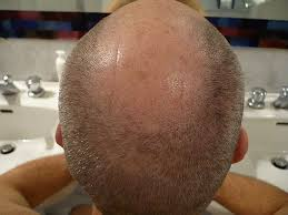 haircuts for crown bald spots how to cut a bald man s hair better than a barber leaftv