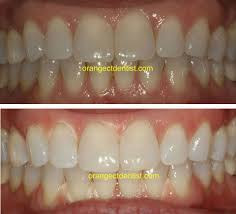 before and after teeth whitening photos using the ez white