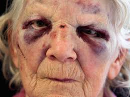 Partially Blind Yob Did This To 92 Year Old Grandmother To Steal Just 30 Uk