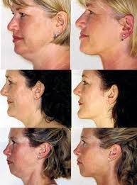 hairstyles for women with sagging necks best 25 neck lift ideas on pinterest face exercises neck