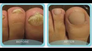yellow nails toe nail fungus treatment japanese toenail fungus code the best natural remedy so far