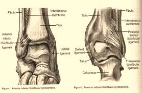 Ankle Ligament Tear Mri Stem Cell Treatment Of Ankle Pain In An Ankle Fusion Candidate