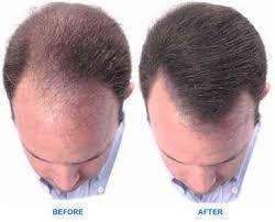membuat minyak kemiri untuk rambut botak minyak kemiri untuk rambut
