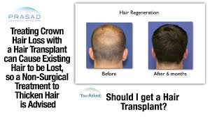 male pattern baldness at the crown can be treated without a risky