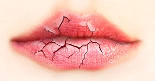 Chapped Lips Meme - what your chapped lips are trying to tell you