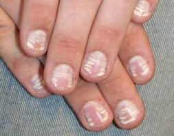 which nail problems indicate health issues