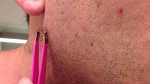 pilonidal cyst diagram the longest grossest ingrown hair in history youtube