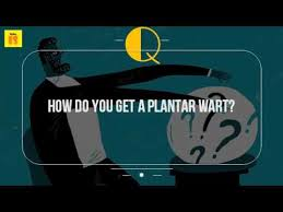 How Do You Get Planters Warts by How Do You Get A Plantar Wart Youtube