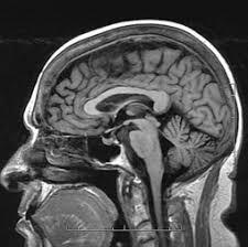 Sagittal Brain Mri Anatomy Mri Of The Head And Neck Radiology Key
