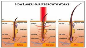 low level light therapy hair low level laser therapy for men and women