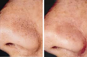 dr raed clinic blackheads before and after