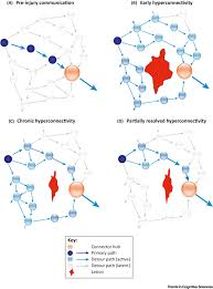 injured brains and adaptive networks the benefits and costs of