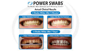 Best Way To Whiten Teeth At Home New Power Swabs Changes The Way You Can Whiten Your Teeth Wish Tv