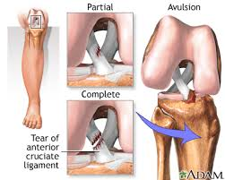 Anatomy Of Knee Injuries Anterior Cruciate Ligament Acl Injury