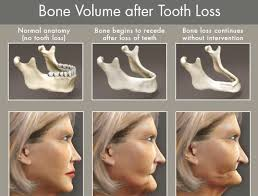 Bridge Dental Cost Estimate by Evozbridge All On Dental Implants Cost 1000s Less