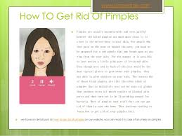 Get Rid Of Blind Pimple How To Get Rid Of Pimples Fast