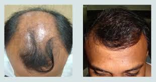 membuat minyak kemiri untuk rambut botak inilahpenumbuhrambut cara cepat menumbuhkan rambut saya