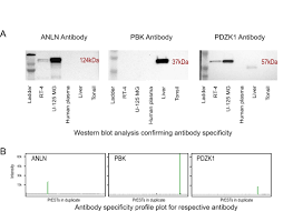 systematic antibody generation and validation via tissue