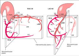 Heart Anatomy Arteries Coronary Anatomy Pcipedia