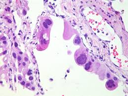 lepidic pattern meaning file adenocarcinoma with focal lepidic growth 6999330610 jpg