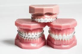 orthodontic braces buying guide glenn carty orthodontist