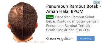 obat rambut penumbuh rambut botak mengatasi rambut rontok 7 obat penumbuh rambut botak terbukti green angelica green