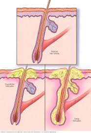 types of ingrown hair folliculitis symptoms and causes mayo clinic