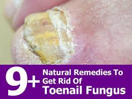 9 natural remedies to get rid of toenail fungus