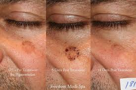 intense pulsed light review photo freedom medi spa