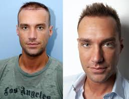male pattern baldness hairstyles celebrity big brother s calum best has three hair transplants